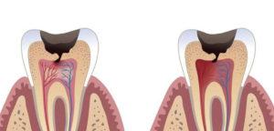 Lange zahn ziehen nach dicke backe wie Dicke Backe: