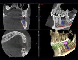 Navigierte Implantologie in München