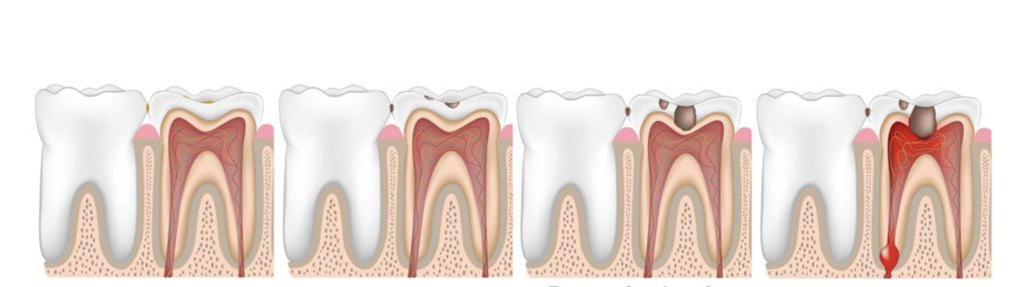 Zahnentzündung durch Karies