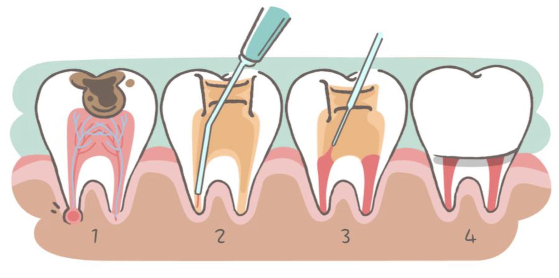 Zahnwurzelentzündung Wurzelkanalbehandlung