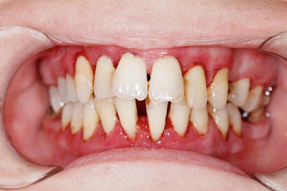 Zahnfleischtaschen Gingivitis