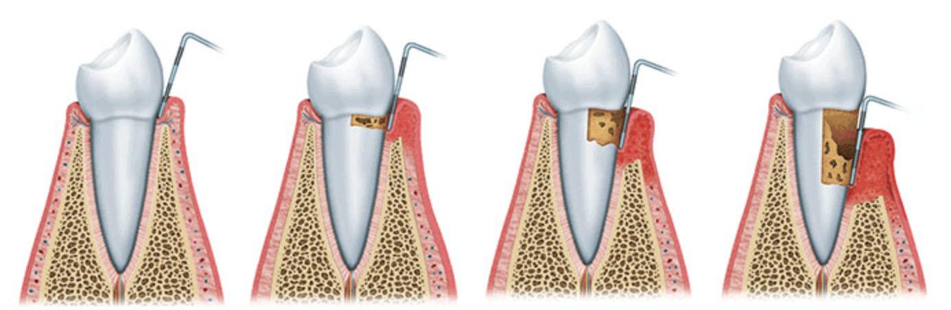 Zahnfleischtaschen messen