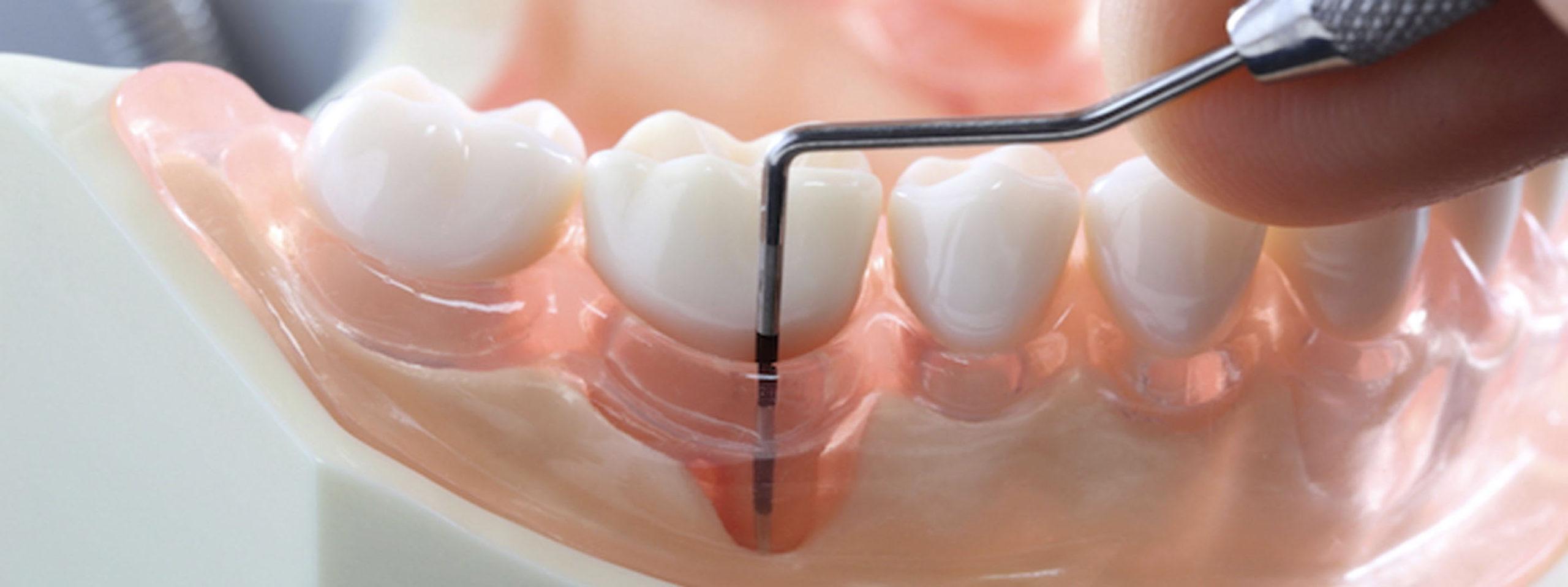 Zahnfleischtaschen