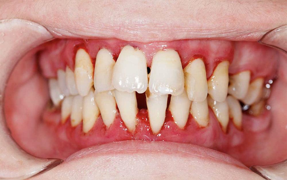 Zahnwurzelentzündung durch Parodontitis
